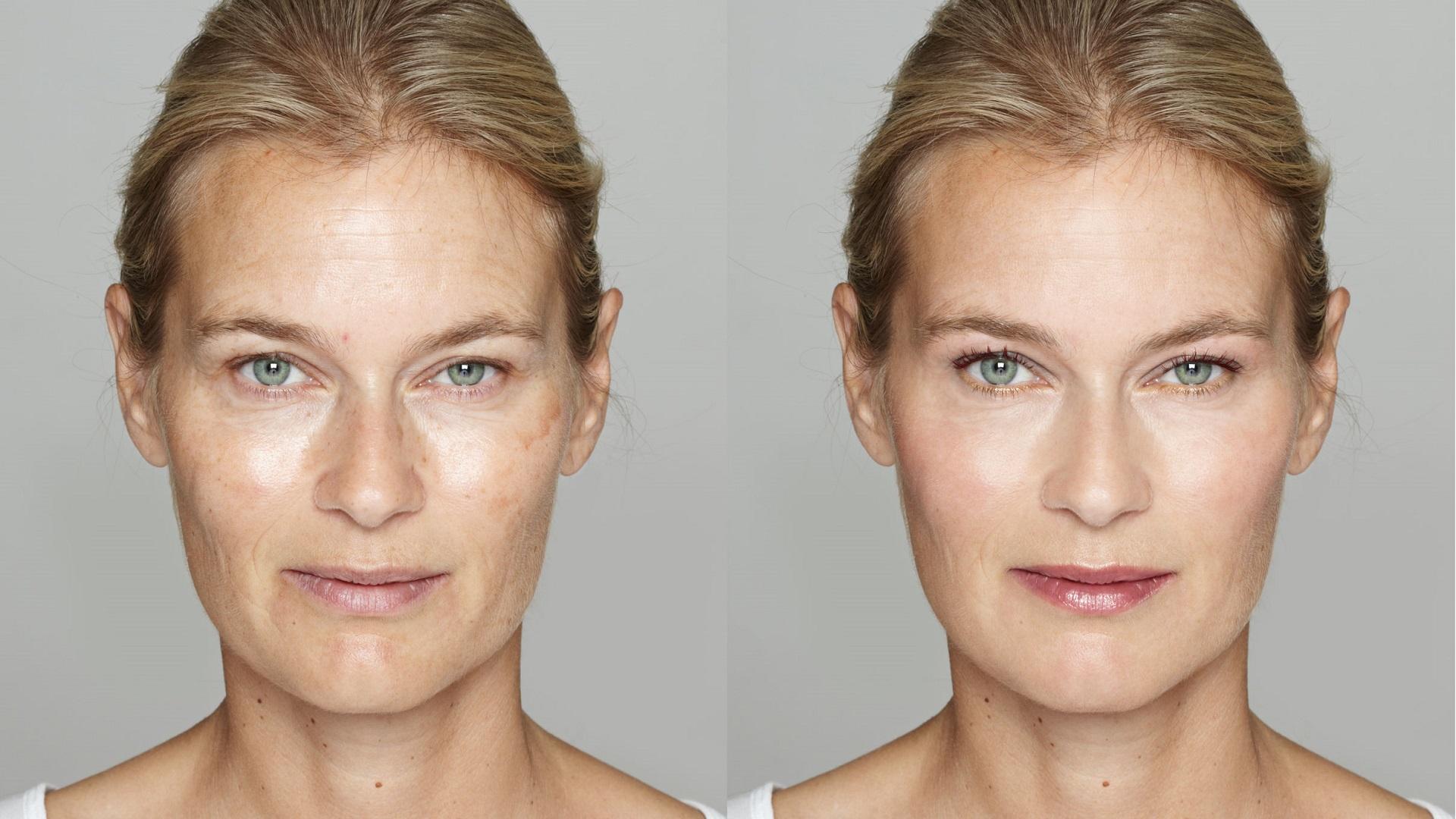 Perdita d'elasticità della pelle: come prevenirla?